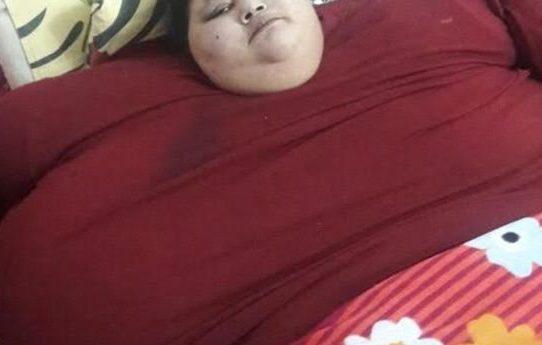 Mujer más gorda del mundo será operada en India