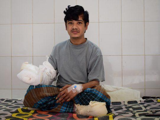 """El """"hombre árbol"""" saldrá pronto del hospital tras 16 operaciones en Bangladesh"""