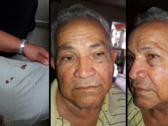 Denuncian al Alcalde de San Miguelito por agresión