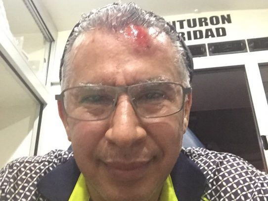 Director del CSS Alfredo Martiz sufre herida tras hecho de tránsito