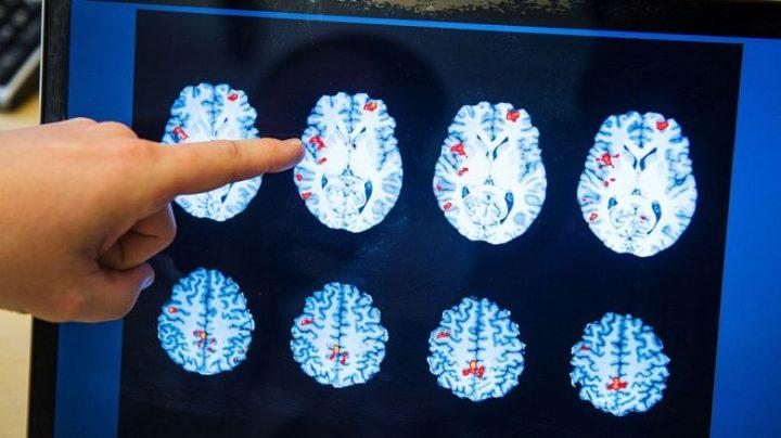 """Los cerebros femeninos parecen """"años más jóvenes"""" que los masculinos, según estudio"""
