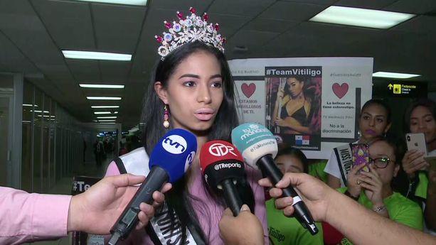Paulett Rosales llega a Panamá luego de ser expulsada de reinado por vitíligo