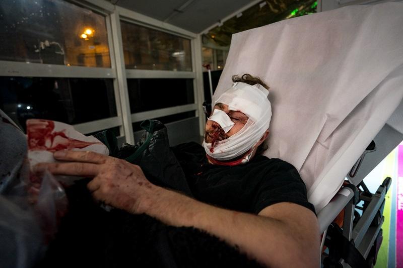 La AFP pide investigación tras agresión sufrida por un fotógrafo durante manifestación en París
