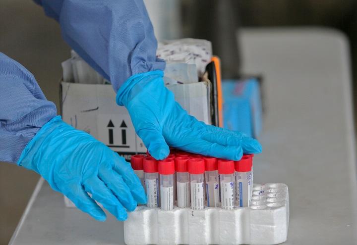 Índice de Precios de Consumo Covid-19 registra disminución en mascarillas e hisopado - PCR