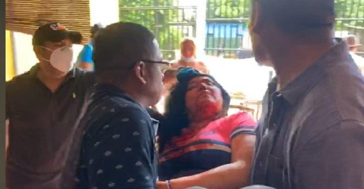 Una periodista herida en ataque con piedras de sandinistas contra opositores en Nicaragua