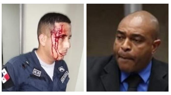 Diputado 'Bolota' Salazar amenaza a policías y justifica agresión contra un uniformado
