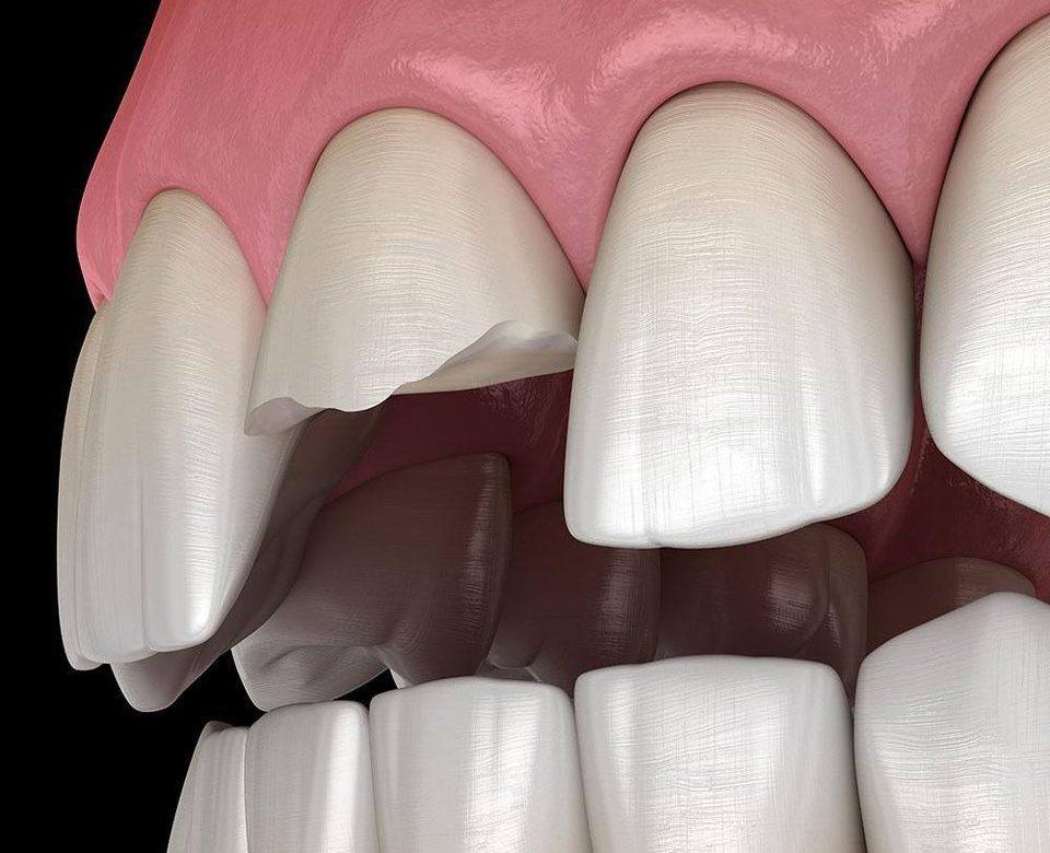 Los dentistas enfrentan una epidemia de dientes rotos. ¿Qué está pasando?