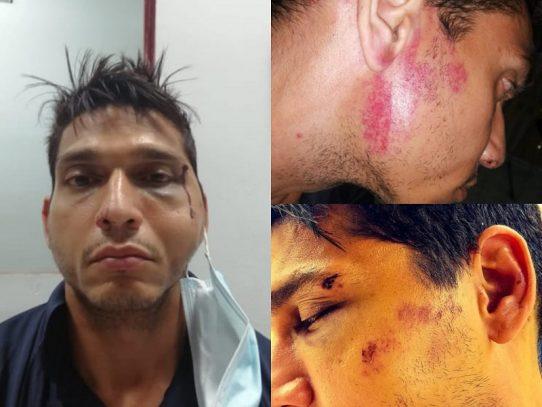 Policía investiga supuesto abuso de sus unidades a una persona en Betania
