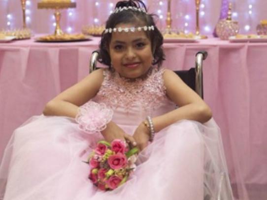 """Muere a los 15 años la """"niña sirena"""" de Perú"""