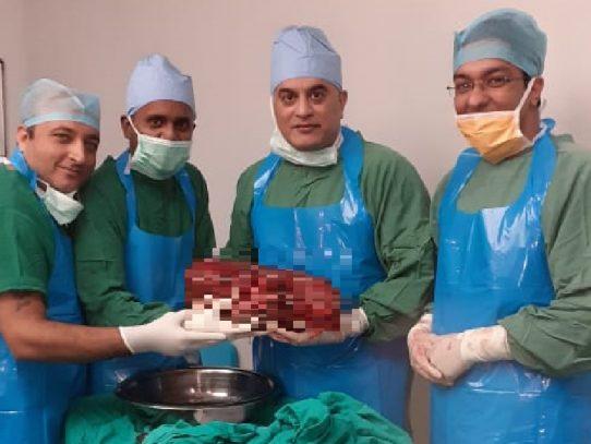 Médicos extirpan en India un riñón de 7,4 kilos