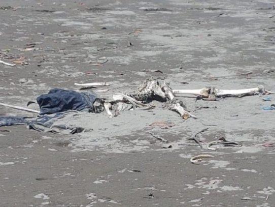 Encuentran una osamenta en Chimán