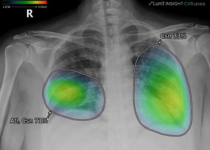 Lanzan nuevo sistema de inteligencia artificial para detectar anomalías en radiografías torácicas