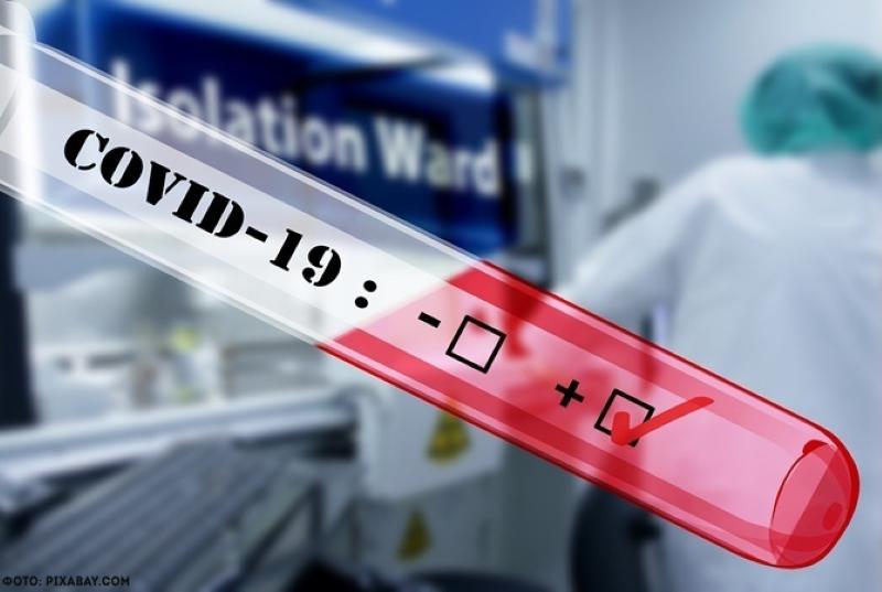 Acodeco presenta resultados de monitoreo de precios para pruebas de Covid-19