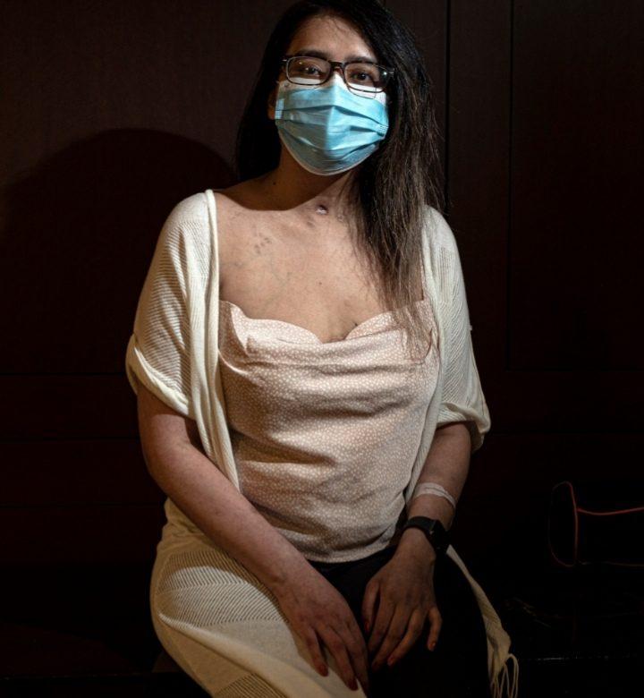 Una paciente de COVID-19 es dada de alta tras recibir un extraordinario trasplante doble de pulmón