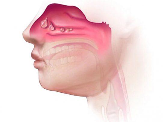 ¿Cuál es la causa de los pólipos nasales? ¿Hay que extirparlos siempre? ¿Pueden reaparecer?