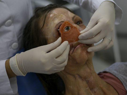 Prótesis de bajo costo le da una nueva cara a sobreviviente de cáncer en Brasil