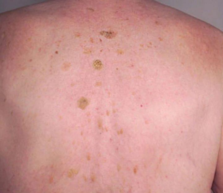 La queratosis seborreica no aumenta el riesgo para cáncer de piel