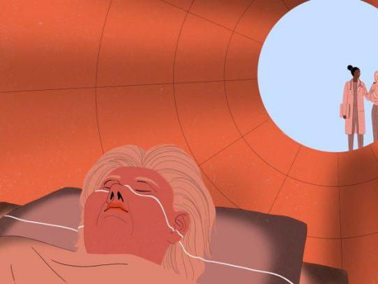 Un escaneo cerebral podría predecir el alzhéimer. ¿Deberías someterte a uno?