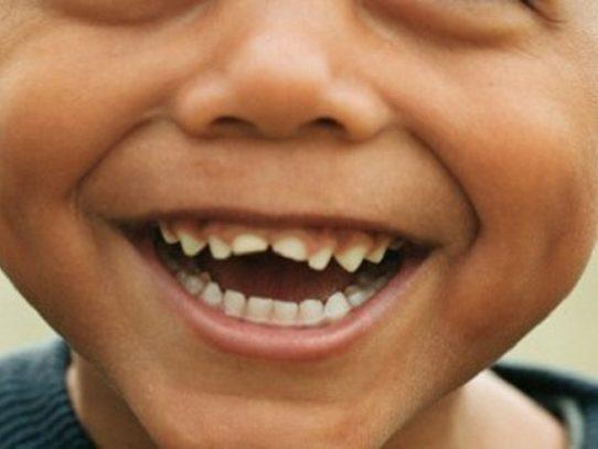 Traspasan viviendas a la Fundación Operación Sonrisa