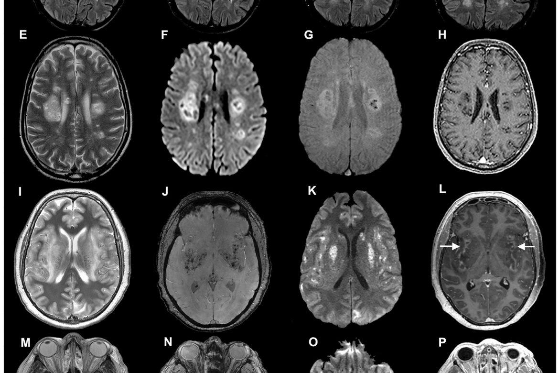 Cómo el coronavirus ataca el cerebro